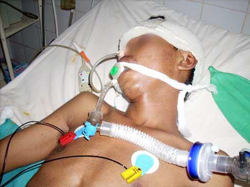 Soins palliatifs : Encore inconnus du public